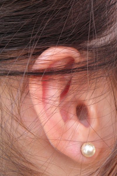 Swimmer's Ear Remedy